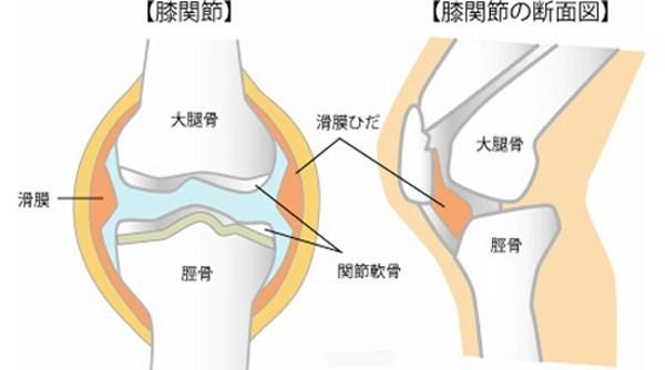 の お が 膝 痛い 皿 「膝の内側が痛い」原因から対処法・受診タイミングまで専門医が解説 ひざ痛チャンネル